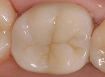 finito intarsio dentista brescia