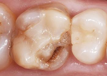 inizio intarsio dentista brescia